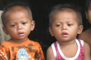 Twins from Sambuhr Village